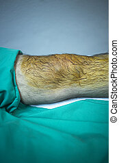Patient in hospital clinic before injection of PRP