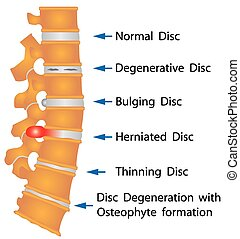 Spine conditions. Degenerative Disc. Bulging Disc. Herniated...