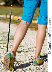 Varicose veins - Woman with varicose veins on a leg walking...