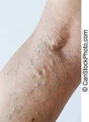 Varicose veins close-up - Varicose veins on a leg, close-up