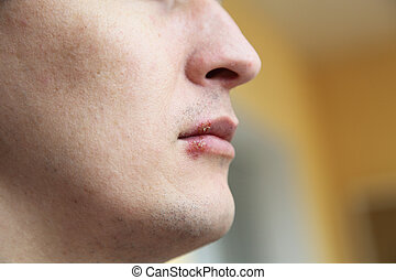 herpes on the lips - wound from herpes on the lips