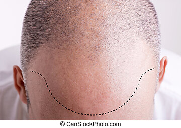 Hair Loss - Top view of a men's head with a receding hair...