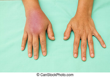 Female hands one swollen and inflamed after accident