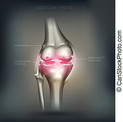 Osteoarthritis knee joint destruction detailed anatomy...