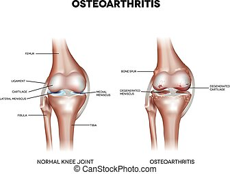 Knee Osteoarthritis and normal joint detailed anatomy