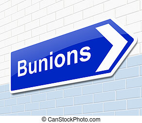 Bunions concept - Illustration depicting a sign with a...