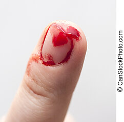 picada, dedo