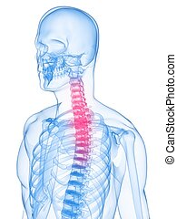 inflamed neck - 3d rendered x-ray illustration of human...
