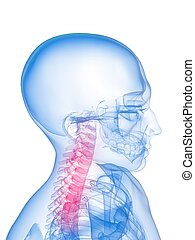 inflamed neck - 3d rendered x-ray illustration of a human...