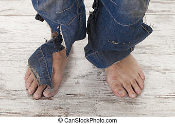 poor feets - concept of a poor person and his feets