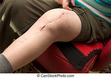 senior adult with scar on knee, after surgery with knee...