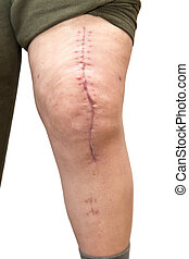 knee with scar, isolated on white