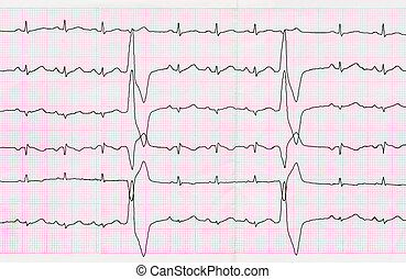 Tape ECG with ventricular premature beats quadrigeminia -...