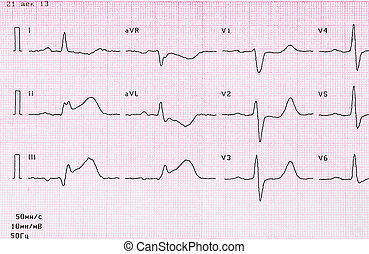 Tape ECG with acute period of myocardial infarction -...