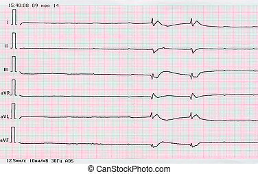 ECG tape quot;dying heartquot; - Emergency Cardiology ECG...