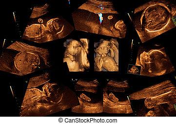 bebé, en, el, Ultrasonido, imagen,