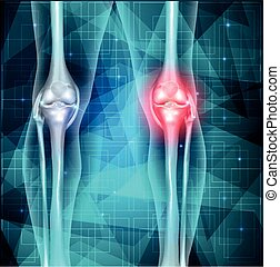Knee joint pain abstract blue triangle background