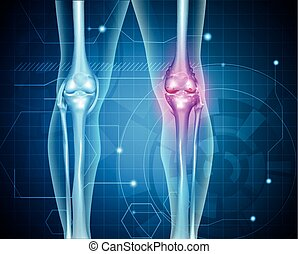 Knee pain abstract background Healthy joint and unhealthy...