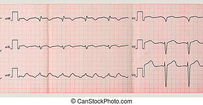 Tape ECG with paroxysm of atrial flutter - Emergency...