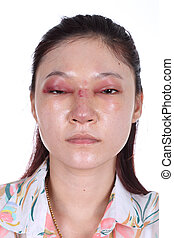 woman with nose and eye swelll after nose job plastic...