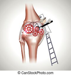 Knee joint abstract treatment procedure illustration. Doctor...