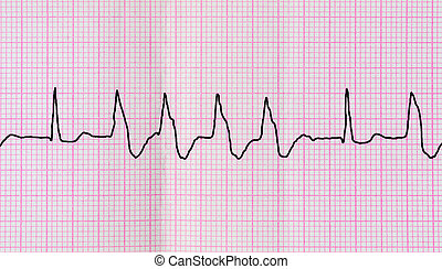 Tape ECG with group ventricular extrasystoles - Emergency...
