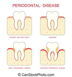 tooth periodontal disease, dental gum periodontists