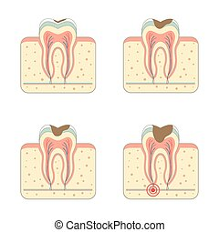tooth decay disease, dental root tinfection