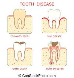 tooth disease, - tooth decay disease,periodontal gum,...