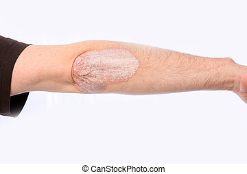 psoriasis - Psoriasis on the elbow, the arm is stretched out
