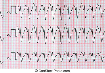 ECG with paroxysm correct form of atrial flutter - Emergency...