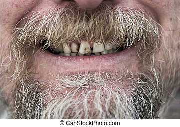 Man with tobacco stained teeth