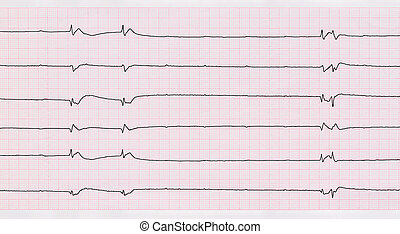 ECG with single ventricular complexes and ventricular...
