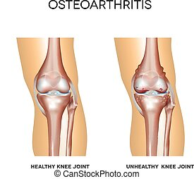 Healthy knee and knee with osteoarthritis on a white...