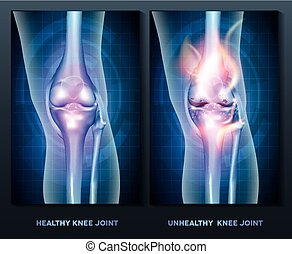 knee - Normal knee and unhealthy abstract burning knee joint