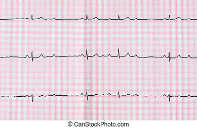 ECG with atrioventricular block AV block II degree type...