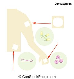 Different Items of Contraception and Birth Control -...