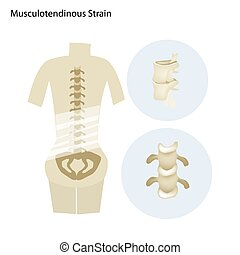 Illustration of Musculotendinous Strain or Lumbar Spine -...