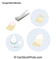 Fungal Nail Infection and Take Care - Medical Concept,...