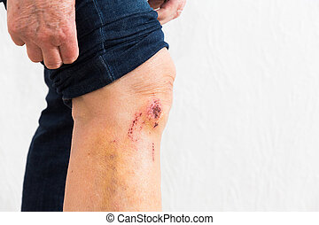wound  - leg with some scrapes from a toppling