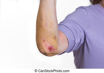 hematoma - female arm with big bruises from a fall