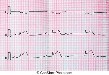 ECG with acute period of macrofocal myocardial infarction,...