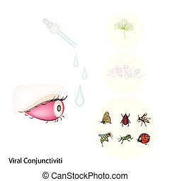 Eye with Viral Conjunctivitis or Pink Eye - Medical Concept,...
