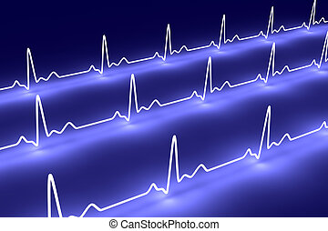 Pulse Trace - 3D rendered Illustration Heartbeat graph