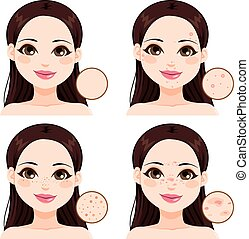 Woman Skin Problems - Young woman showing the effects...