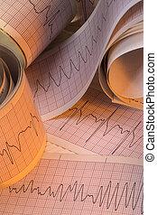 Electrocardiograph Traces - Cardiac Arrhythmia -...