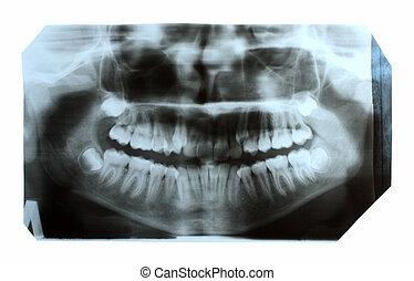 dentaire, Rayon X, image, mâchoire