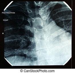 radiografía, correcto, final, PICC, (peripherally,...
