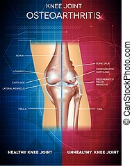 Osteoarthritis and healthy knee joint. Healthy part of the...