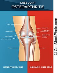 Osteoarthritis and normal joint - Osteoarthritis and normal...